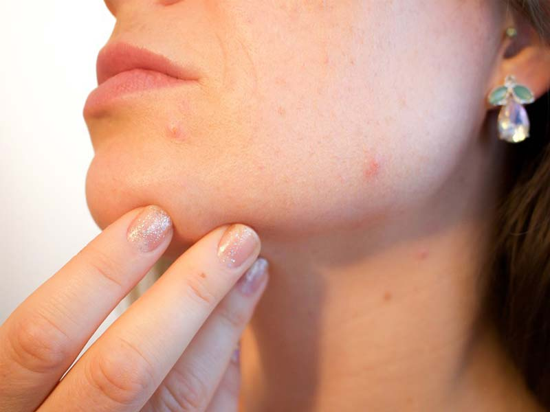 Severe Acne Treatment: What Are My Options?